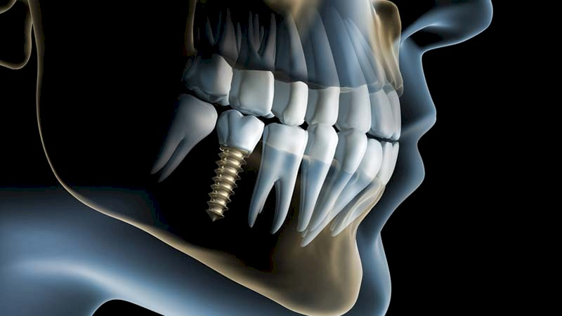 Knochenaufbau-implantate