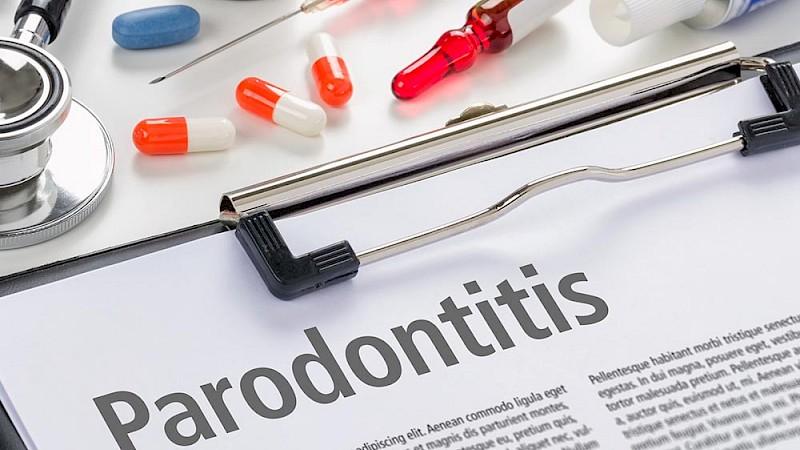 Informationen über die Parodontitis-Behandlung.