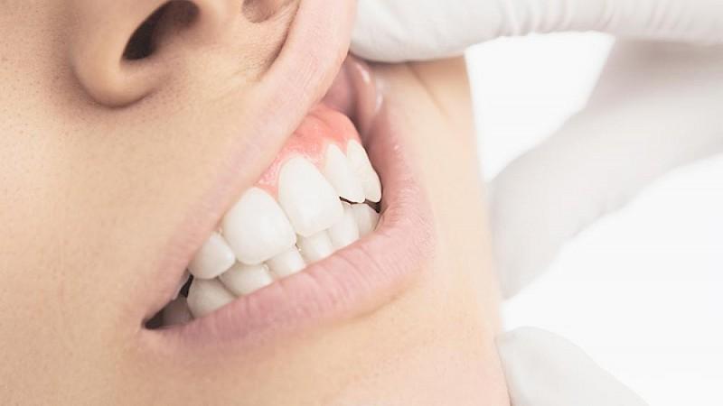 Erkrankung der Mundschleimhaut als Ursache für Mundgeruch.