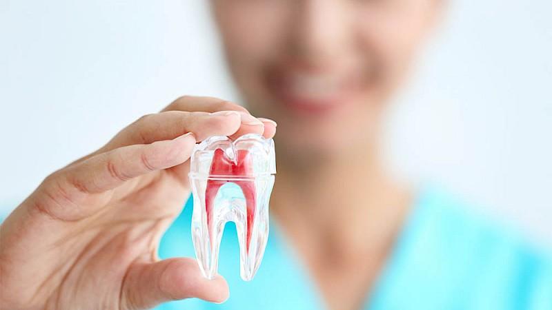Frau mit der Abbildung eines Zahnes für eine Wurzelbehandlung.