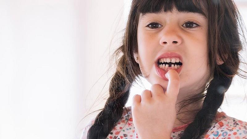 Zähne wachsen schief nach