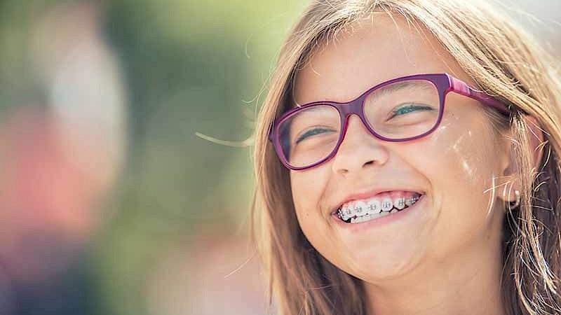 Wissen rund um die Zahnspange für Kinder und Erwachsene