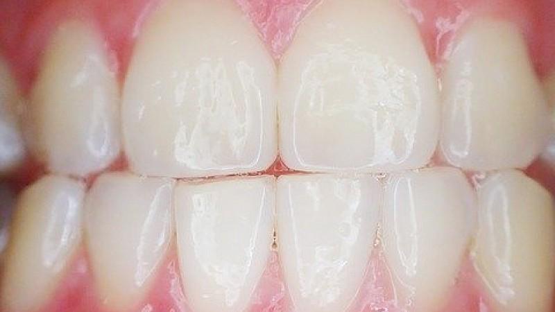 Zähneknirschen stoppen